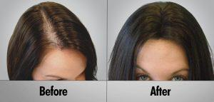 Alopecia Treatment Before and After