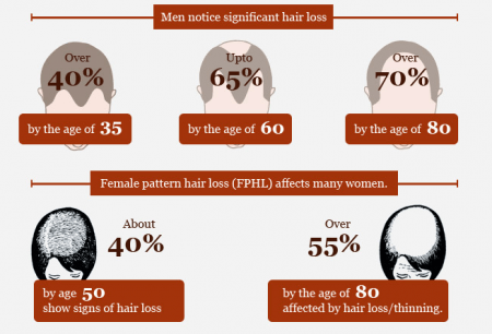 Is There A Solution for Baldness Infographic on Baldness And Hair Loss Facts Infographic