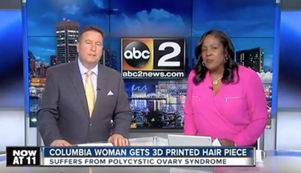 Colombia Woman Gets 3D Printed Hair Piece
