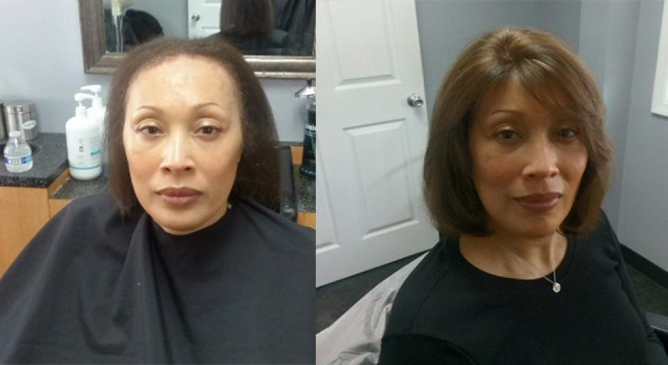 Transitions Hair Solutions Specialize In 3D Hair & Scalp Restoration