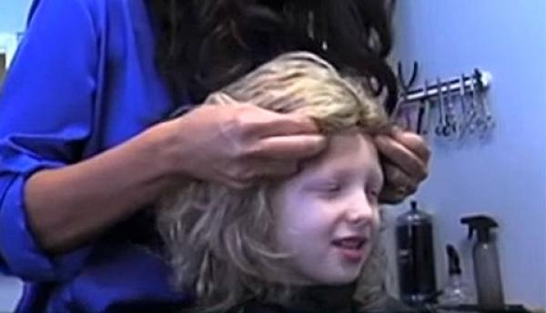 Alopecia and Children's Hair Loss