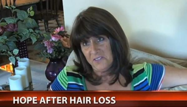 Hair System Helps Woman Recover After Cancer Treatment